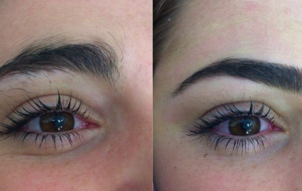 Eyebrow Shaping 1
